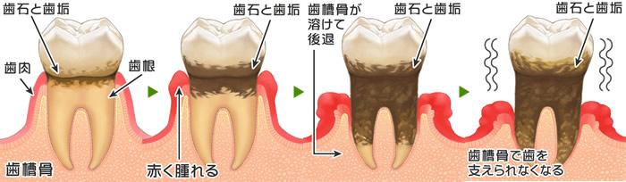 歯周病 歯石除去 歯槽膿漏